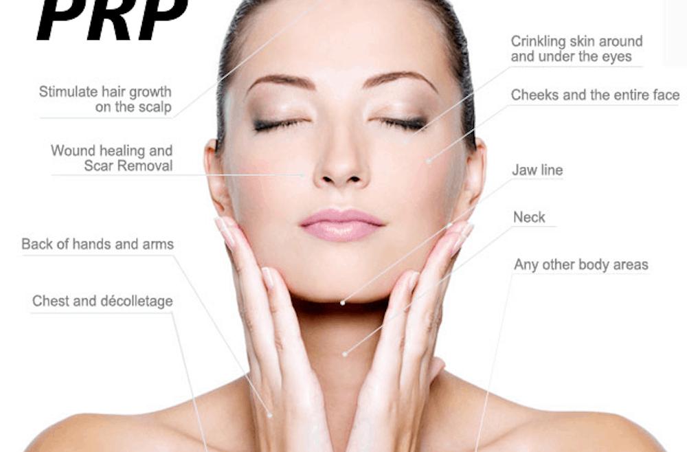 PRP-for-Facial-Rejuvenation-640W-1000x658[1]