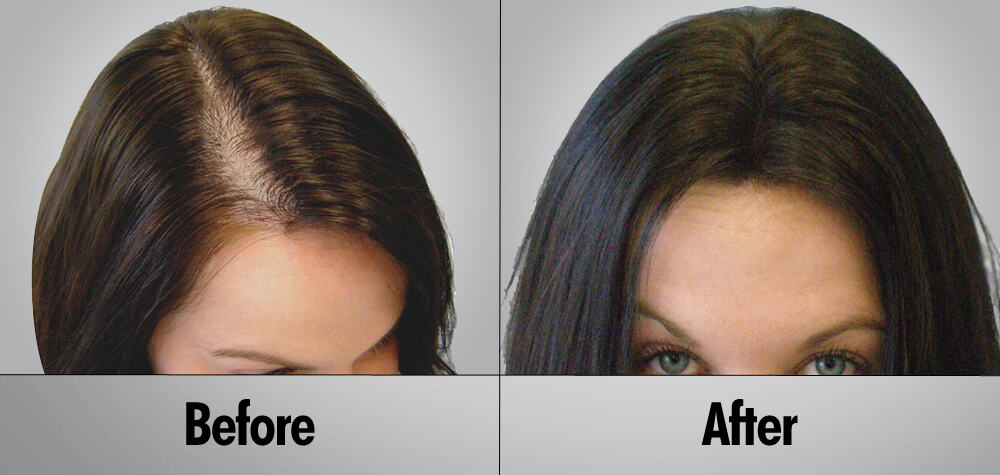 female hair transplant success rate