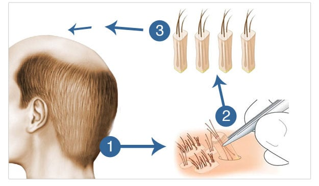 hair_transplant_follicular_unit_extraction-_fue_technique_1[1]