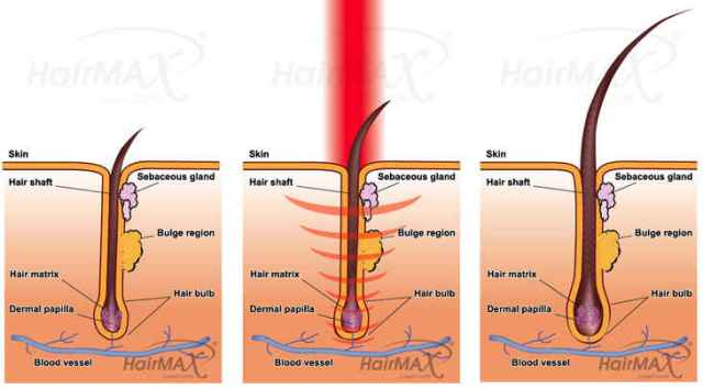How does laser hair loss treatment work?