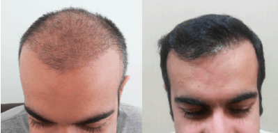 Hair transplant clinic in near me