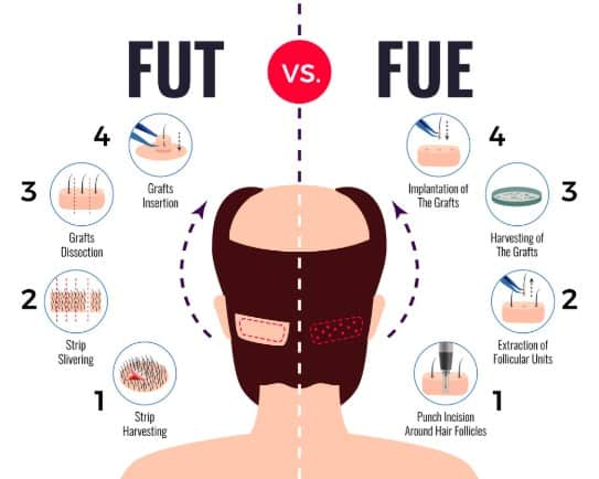 FUE Vs FUT Results - Majestic Derma