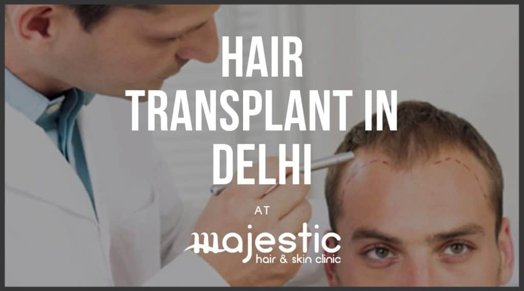 Hair Transplant in Delhi, Procedure & Cost – Majestic Derma