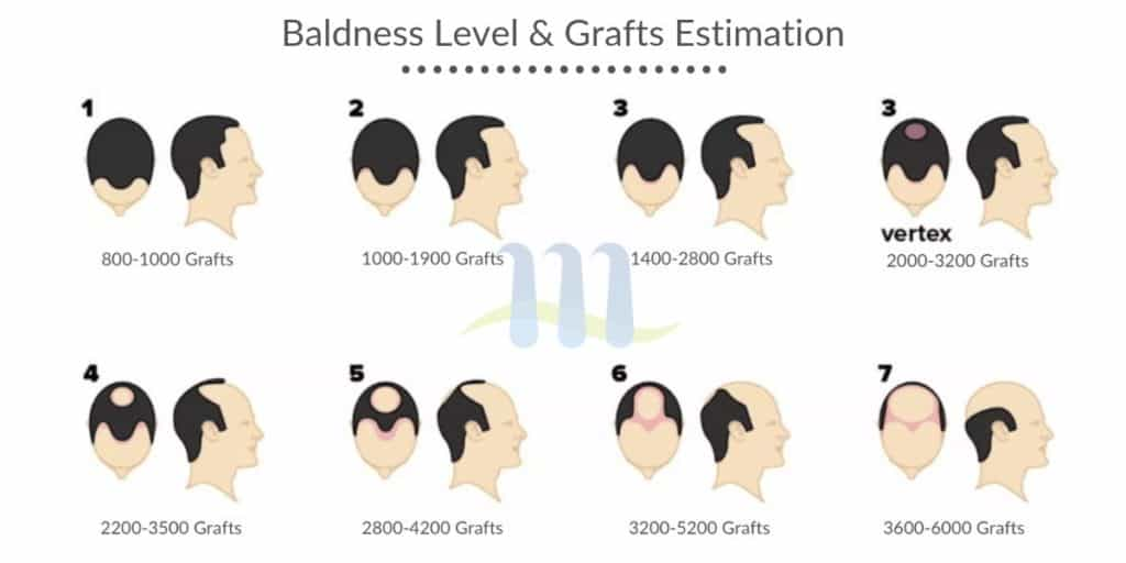 How the Baldness Level is Checked - Majestic Derma