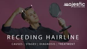 Receding Hairline: Causes, Stages, Diagnosis and The Best Ways To Treat