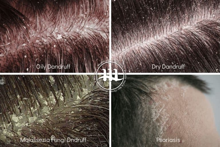 Types of Dandruff